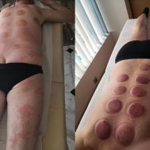 skin problem 1